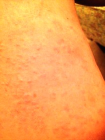 rash with bee stinging feeling