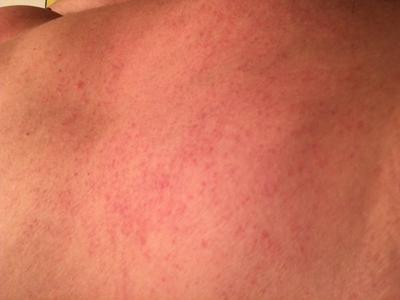 Red scratch like dotted skin rash on back.