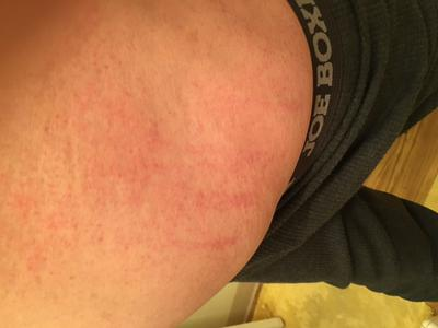 Close up view of red scratch like rash on torso.