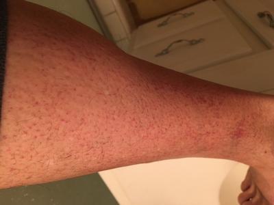 Red scratch like rash on leg.