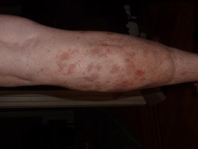 Reddish patches on the calve of my leg that are not itchy and likely caused by medications.