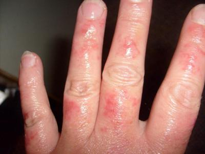 Reoccurring Itchy Skin Rash on Hand and Fingers