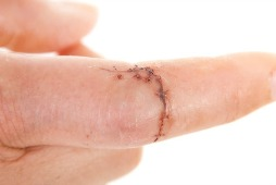 wound will result in a scar on this finger and vitamin e may help fade the scar