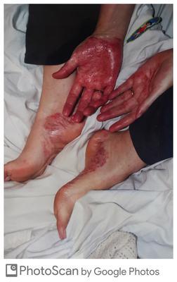 Palmoplantar-pustular Psoriasis severe foot and hand skin rash