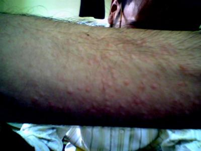 Skin Allergy Rash