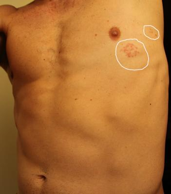 Skin rash on chest with fever
