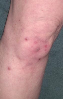Skin Rash on Legs and Knees
