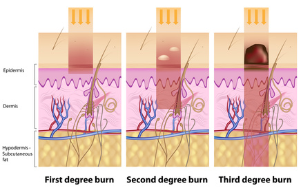 types or severity of skin burns