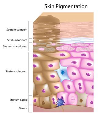 diagram of skin cells showing skin pigmentation problem