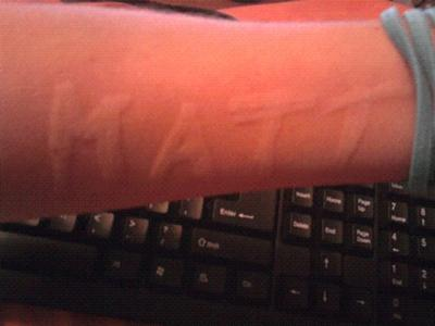 skin writing or dermatographism on arm