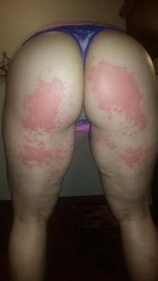 Rash on buttocks and legs possibly caused by streptozyme or strep.