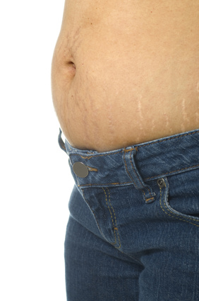 stretch marks on the skin of the belly