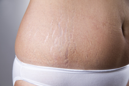 stretch marks on the skin