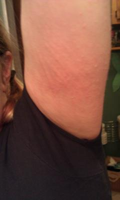 Thyroid medication causing skin hives on body.