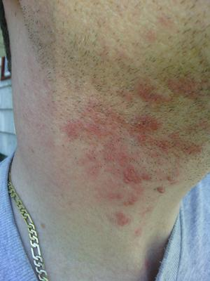 Unknown non itchy skin rash on neck