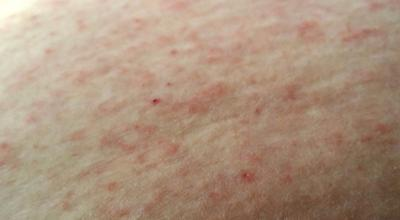 Unknown rash on the skin that has spread.