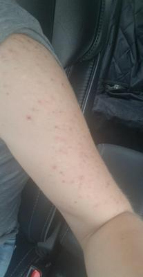 Acne looking skin disorder on arm.