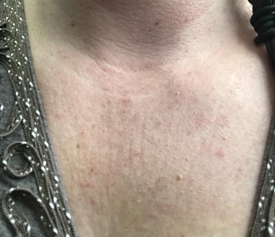 unknown rash on upper chest and neck