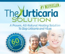 natural cure for urticaria and skin hives
