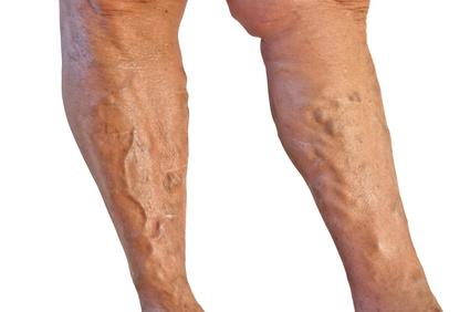 varicose veins skin problem on both legs