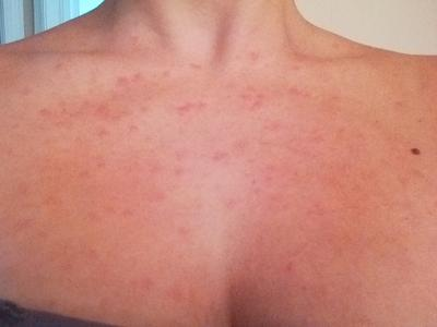 Rash on chest with pus filled postules.