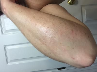 Itchy welts present on arm.