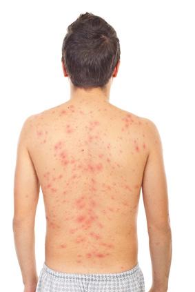 chicken pox rash on skin of back