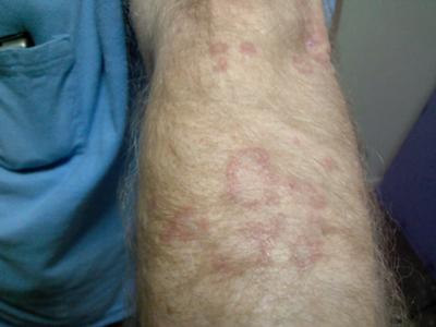 circular skin rash on arm is not ringworm