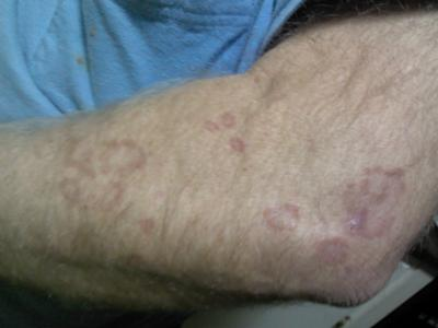 circular skin rash pattern on arm