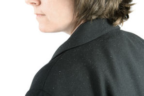 dandruff is a scalp skin care problem