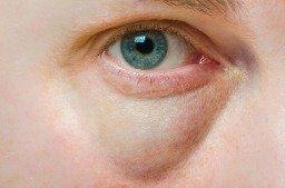 dark circle and puffiness under eye