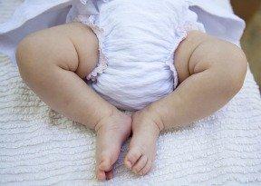 A diaper on a baby can cause a diaper rash.