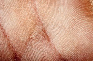 dry flaky skin on hand