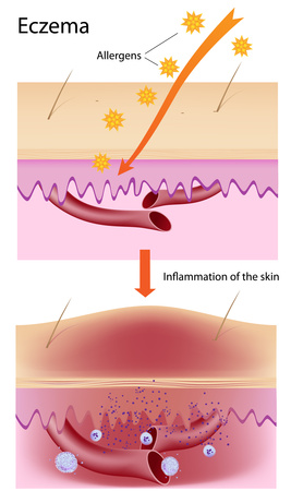 formation of eczema problem on skin