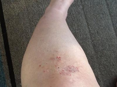Intense itchy skin rash on leg.
