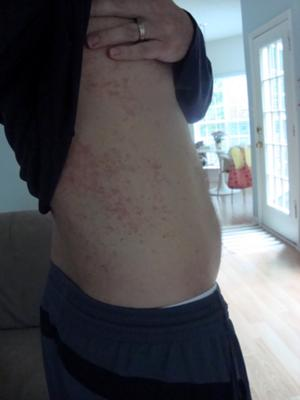 Intense skin rash on side of torso that cannot be treated successfully