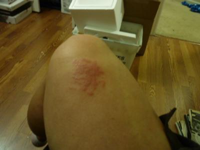 Skin Rash After Cut Healed