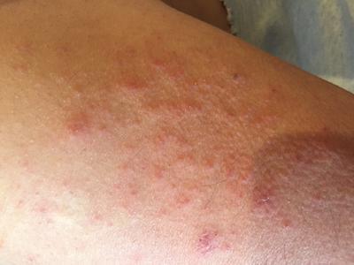 itchy skin rash on arm