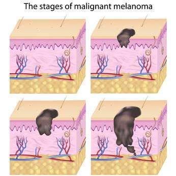stages of malignant melanoma