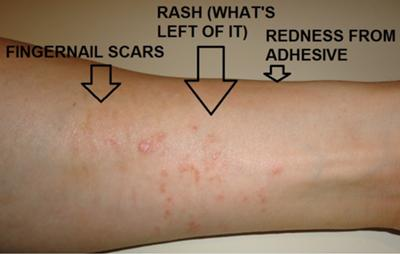 poison ivy looking rash on underside of forearm