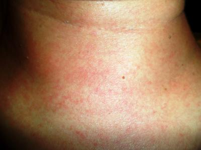 Possible prickly heat rash on neck.