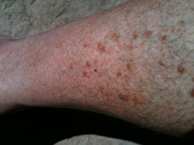 Rash on Shins and Calves