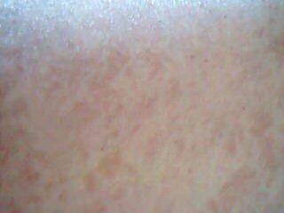 images of skin rashes