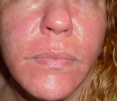 Reoccurring Itchy Red Skin Rash on Face