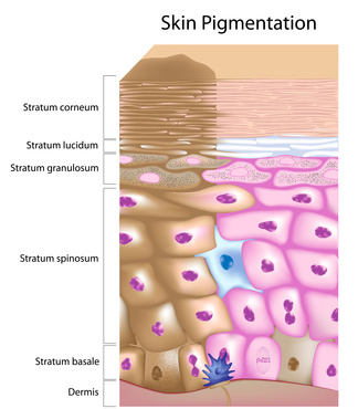 diagram of skin cells showing skin pigmentation problem