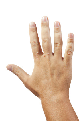 skin warts on fingers and hand caused by the wart virus