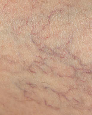 spider veins close up image