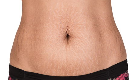 stretch marks on the stomach of a woman