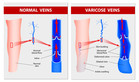 normal and varicose veins schematic diagrams